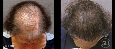 gli case study sue female hair loss treatment scalp