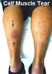 freehand calf muscle skin tear calf muscle pain causes diagnosis symptoms treatment