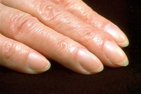 Pictures Of Nails That Show Health Problems