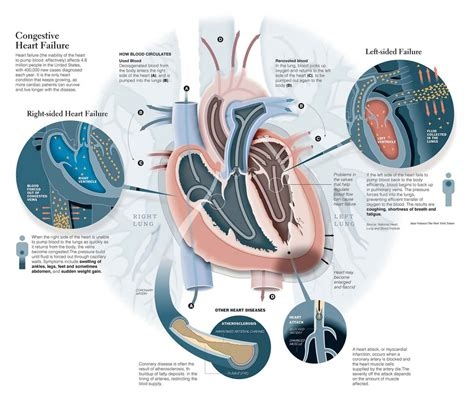 congestive failure expectancy pictures congestive failure anatomy diagram charts
