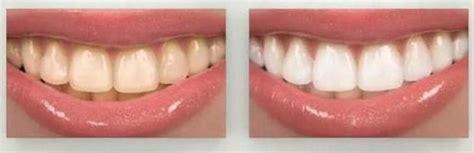 como blanquear dientes en casa como blanquear los dientes en casa blanquear dientes