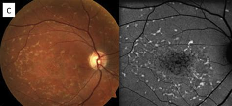 pattern dystrophy prognosis differential diagnosis of retinal disease