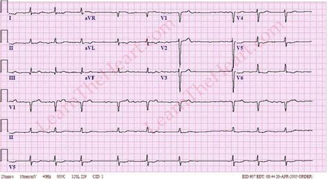 how to get out of afib at home 28 images educator