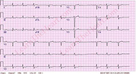 atrial fibrillation with bradycardia exle 1