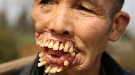 10 scariest diseases in the world youtube