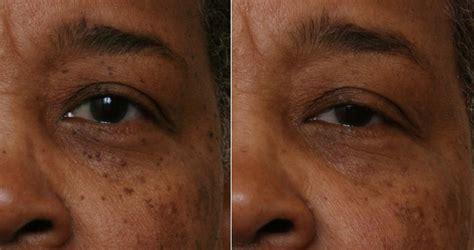 3 photodynamic therapy for acne philadelphia robert 3 photodynamic therapy for acne philadelphia robert
