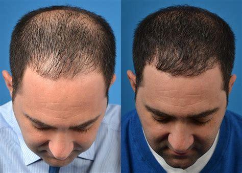 hair transplant melbourne newinhairtransplant incisionless hair restoration melbourne fl