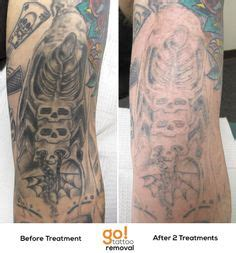 tattoo removal full process pinterest the world s catalog of ideas