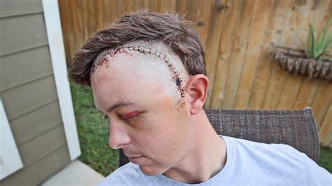 hair cut after brain surgery hair cut after brain surgery head shave after brain