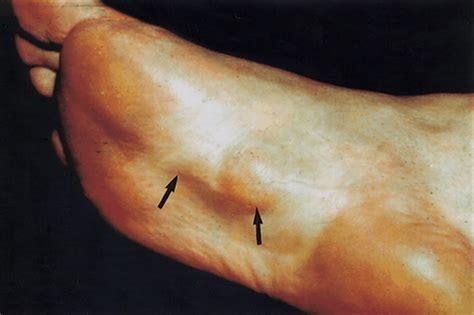 Planter Fibroma by Holistic Ayurveda Fibromatosis