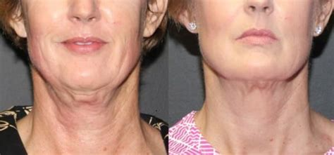 pictures of sagging skin on neck sagging neck skin exercises solutions surgery home