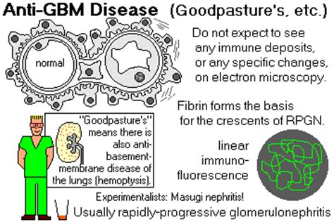anti glomerular basement membrane disease anti glomerular basement membrane disease anti gbm