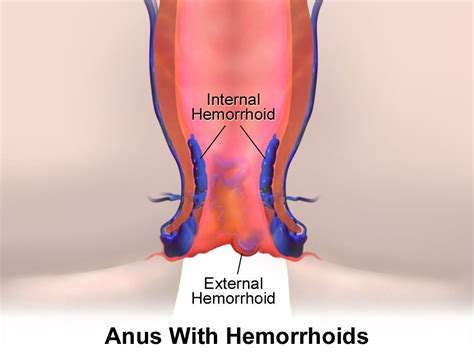 piles pictures and symptoms diagrams hemorrhoids and its treatment