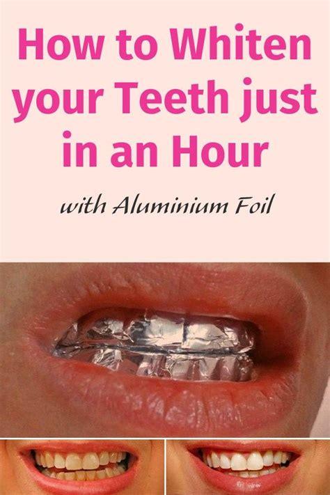 whiten  teeth    hour  aluminium
