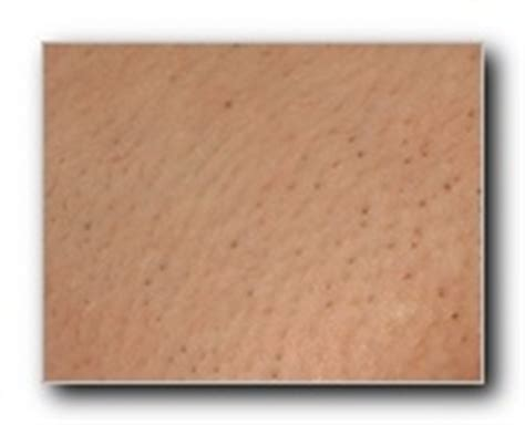 Laser Hair Removal Shedding Process by Hair Shedding And Pepperspots