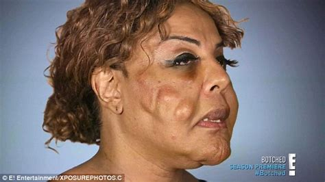 the face of 48 year old woman transgender woman who had cement and tire sealant injected