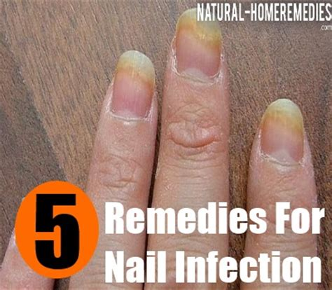 nail bed infection top 5 home remedies for nail infection natural treatments for nail infection
