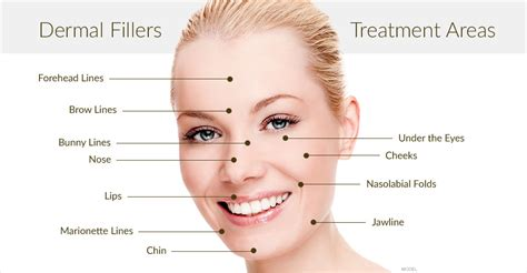 7 Wrinkle Areas And How To Treat Them by Dermal Fillers Hyaluronic Acid Injection For Wrinkles