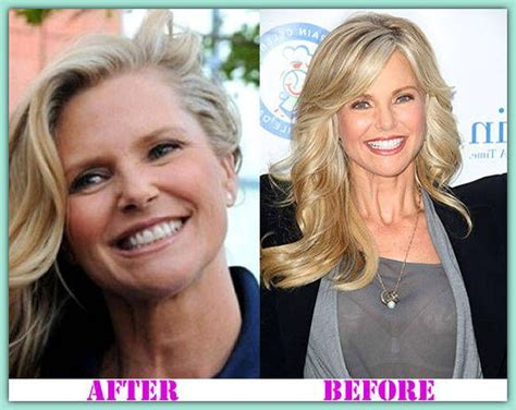 Christie Brinkley Gets Emergency Surgery by Christiebrinkleyplasticsurgery Christiebrinkley