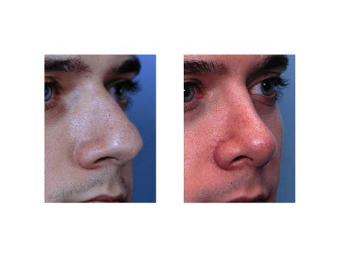 explore plastic surgery dr barry eppley arm lift explore plastic surgery dr barry eppley arm lift 187