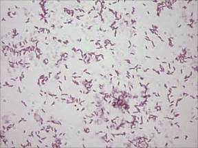 Stain campylobacter infections red book 174 2015 red book online