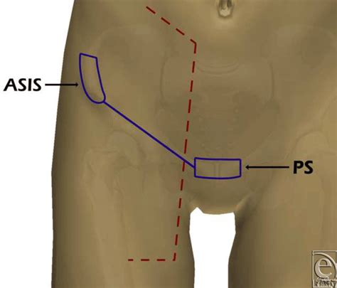 pubis location on men anatomical background of the perforator flap based on the