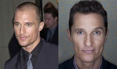 famous black men hairline restoration hair transplant surgery cost results and celebrity