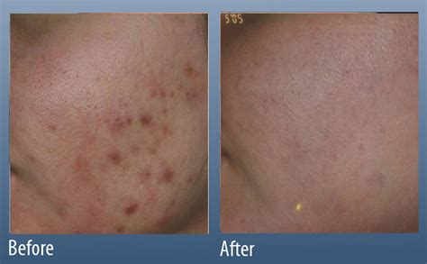 treating acne scars main line center for laser surgery