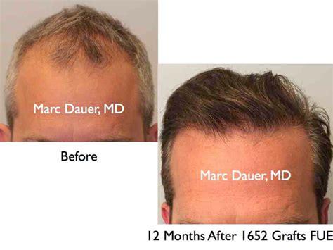 post hair transplant timeline post hair transplant timeline marc dauer md