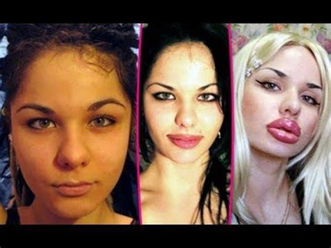 worst celeb plastic surgery worst celebrity plastic surgery before after