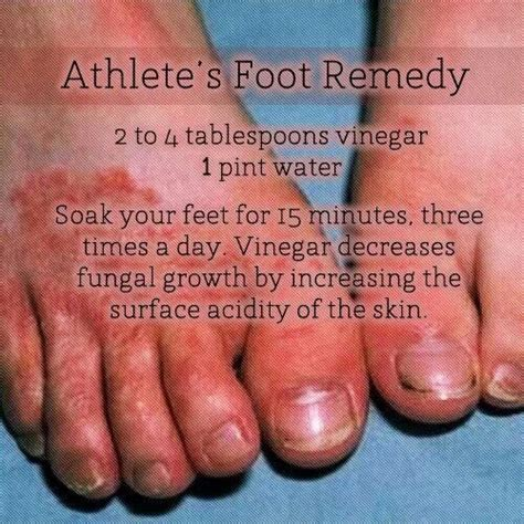 17 best images about remedies for athletes foot on