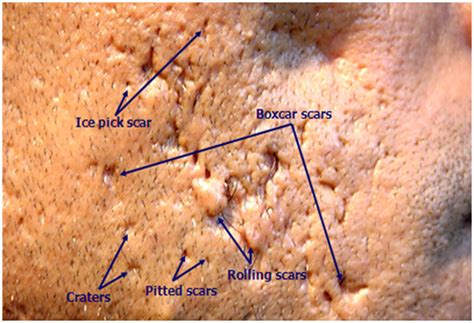 image gallery tca scar