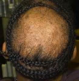 hair weaves for balding hair kitty kitty stop the weave abuse luv your hair