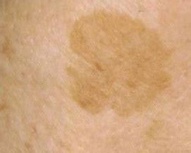 light spots on skin from sun age spot vs skin cancer pixshark com images