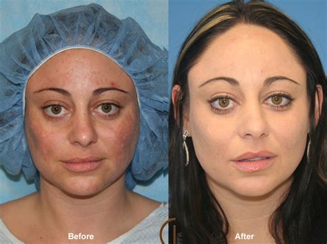 fat grafting plastic surgery before after fat grafting to face 22 orange county fat