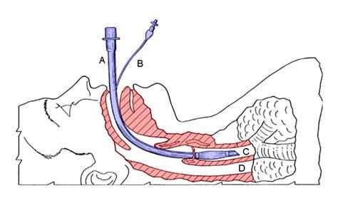 intubation diagram tracheal