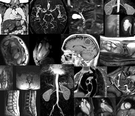 imagenes medicas resonancia magnetica resonancia magn 233 tica imagenolog 237 a colombia ac f ipitimes