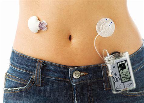 An Artificial 1 pancreas jdrf artificial pancreas