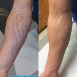 laser tattoo removal clinic zapn ink expert laser removal