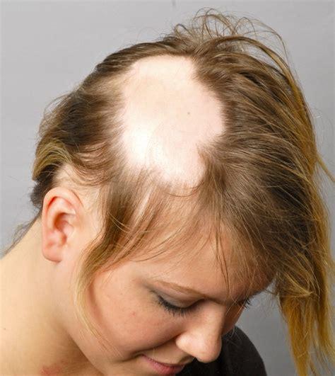 losing leg hair on men 10 strange medical conditions you ve never heard of