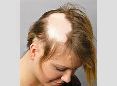 10 Strange Medical Conditions You've Never Heard Of ... Alopecia Areata Totalis