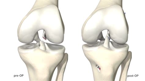 torn acl home treatment torn acl symtoms treatment surgery recovery sportsmd
