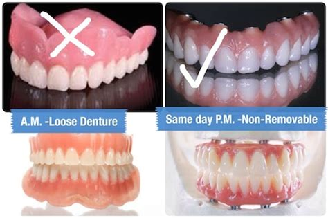 dentures in a day get all on 4 dental implants and new teeth in one day