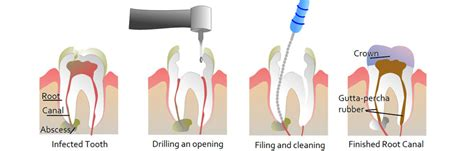 comfort dental root canal cost root canal treatment in gurgaon south delhi root canal