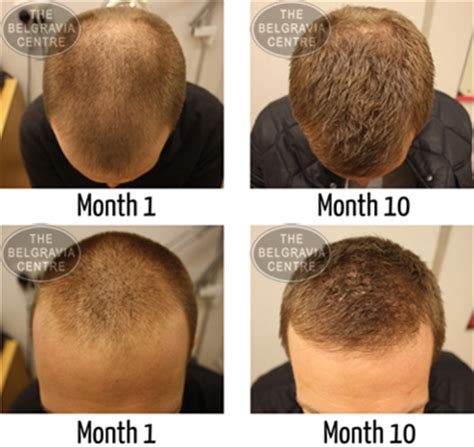 male pattern of hair loss study finds bald men more manly