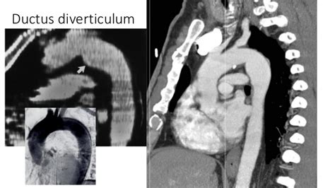 Atherosclerotic Aortic Knob by Atherosclerotic Aortic Knob 28 Images Diseases Of The Aorta Cardiac Pathology Fastbleep