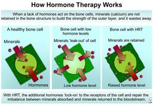 Hormone Replacement Therapy Hormone Replacement And Osteoporosis Causes Symptoms