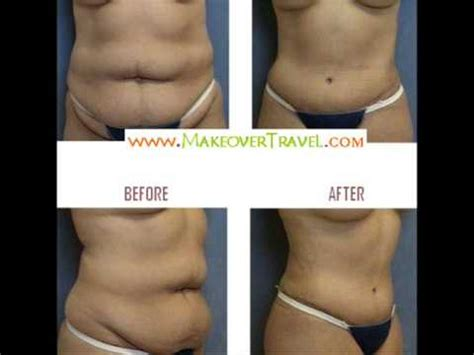 plastic surgery after c section before after plastic surgery liposuction and tummy tuck