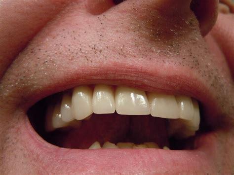 canine teeth human canine teeth are designed to eat