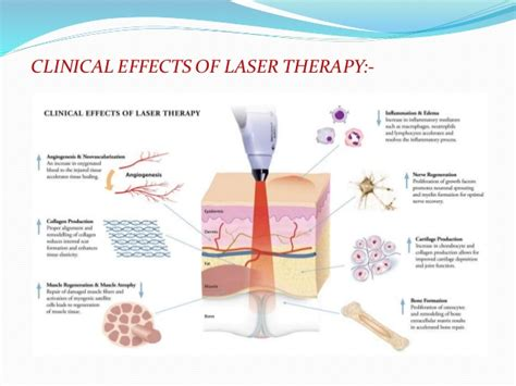 high power laser therapy in physiotherapy laser therapy power point